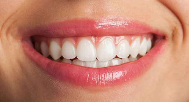 Astuces dents blanches